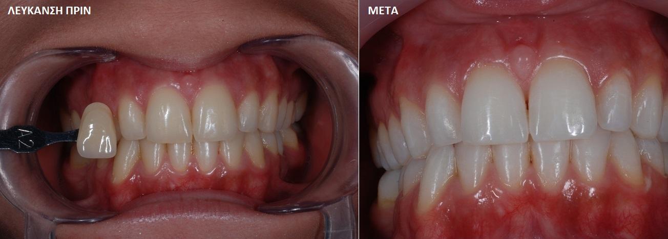 Λεύκανση δοντιών, αισθητική οδοντιατρική Σκαρπέτης Κωνσταντίνος Χειρουργός Οδοντίατρος Άγιος Στέφανος Αττικής