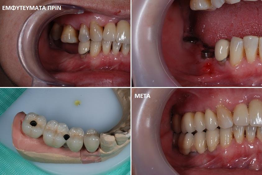 Εμφυτευματα δοντιών Σκαρπέτης Κωνσταντίνος Χειρουργός Οδοντίατρος. Ειδικευμένος στα οδοντικά εμφυτεύματα στον Άγιο Στέφανο Αττικής