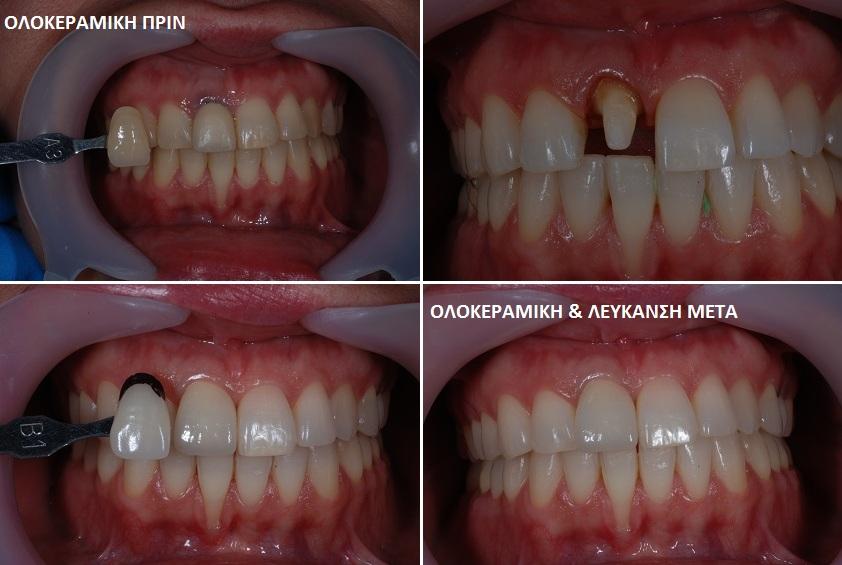 Ολοκεραμική και Λευκανση Δοντιών Σκαρπέτης Κωνσταντίνος Χειρουργός Οδοντίατρος Αισθητική Οδοντιατρική Άγιος Στέφανος Αττικής
