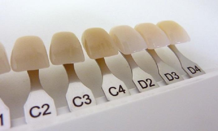Ο Οδοντοτεχνίτης διατηρεί Οδοντοτεχνικό Εργαστήριο στην Πλαπούτα 99 στο Νέο  Ηράκλειο στην Αθήνα. ... 88112d7bd59