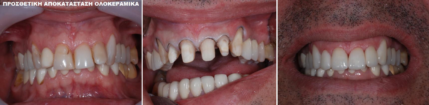 ΠΡΟΣΘΕΤΙΚΗ ΑΠΟΚΑΤΑΣΤΑΣΗ ΟΛΟΚΕΡΑΜΙΚΑ Σκαρπέτης Κωνσταντίνος Χειρουργός Οδοντίατρος Άγιος Στέφανος Αττικής