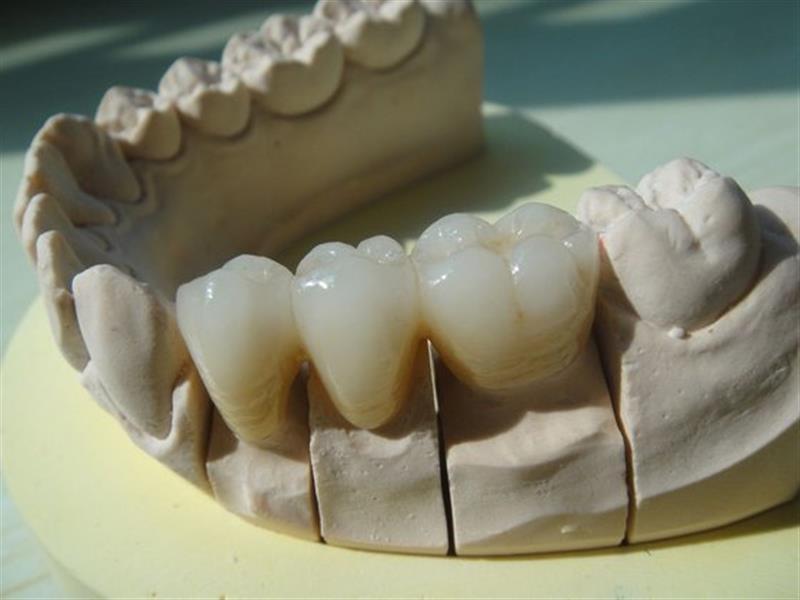 Οδοντοτεχνικό εργαστήριο Ηλιούπολη σε Ηλιούπολη - Φωτογραφίες ... 29fe52a59c9