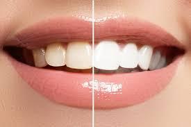 Οδοντίατρος Χολαργός, οδοντίατροι Χολαργός, Εμφυτεύματα Χολαργός